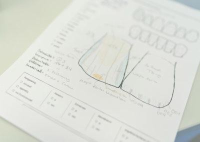 Detaillierte Skizze zur Herstellung von Zahnersatz