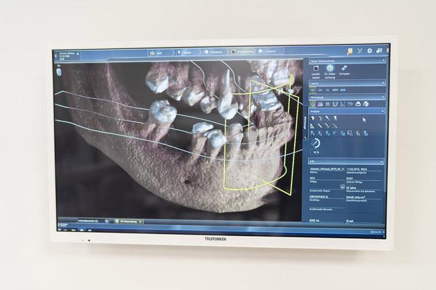 Auf diesem Monitor ist die sehr genaue Darstellung eines Gebisses mit 3-D Röntgen Technik zu sehen