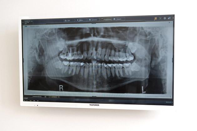 in jedem Behandlungszimmer hängt ein Monitor, um z. b. wie hier digitale Röntgenbilder zu zeigen