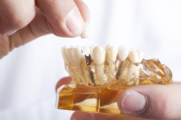 Im Modell sind die künstlichen Wurzeln des Implantats gut zu erkennen