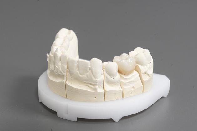 Eine Zahnkrone wird individuell eingepasst